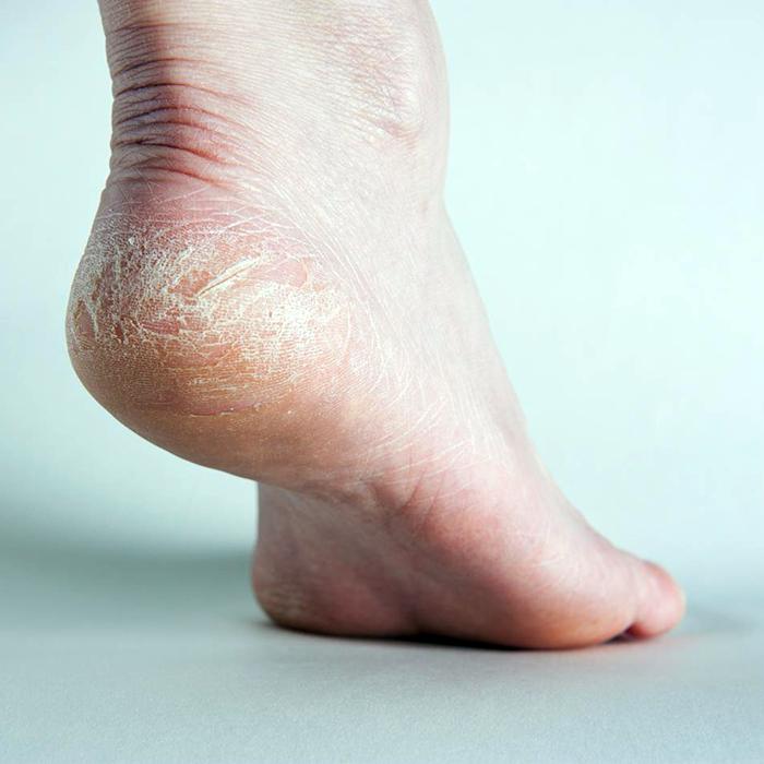 Cách chữa da khô trả lại gót ngọc trong mùa lạnh