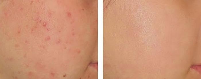 kem-tri-mun-yanhee-acne-cream-10g-thai-lan-5559