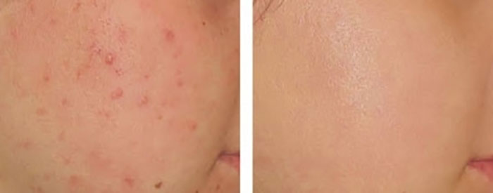 duong-da-mat-kem-tri-mun-yanhee-acne-cream-10g-thai-lan-5559